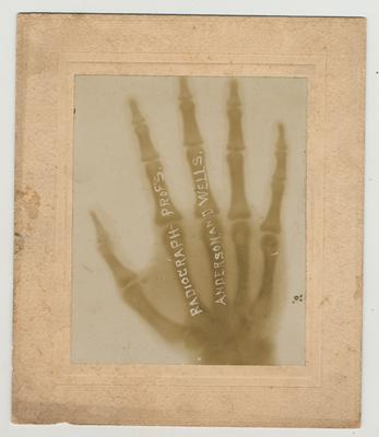 A radiograph taken by Professors Anderson and Wells; Photographer: Edgar C. Loevenhart