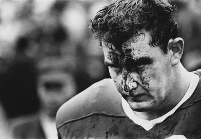 Unidentified UK football player with a bleeding injury on his face, walking off the field; photo appears on page 15 in the 1969 Kentuckian